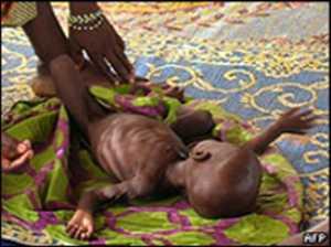 hambruna en niger
